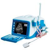 Wt-6000 Full Digital Portable Color Doppler Ultrasound Scanner