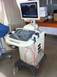 Spanish LED Full Digital Trolley B Ultrasound Scanner CE