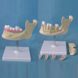 Medical Teaching Human Tooth Location Structure Dental Model (R080113)