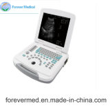Medical Full-Digital Laptop Ultrasound Scanner Yj-U500