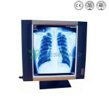 Ysenmed Ysx1704 Medical X Ray Film Viewer
