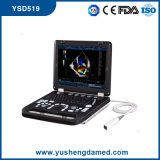 Ce Hospital Medical Equipment Laptop 4D Color Doppler Ultrasound Scanner