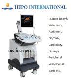 3D Ultrasound Scanner Diagnosis System for Hospital