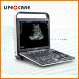 Medical Equipment Portable Color Doppler Ultrasound Systems