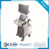 Color Contrast Doppler Ultrasound Diagnostic System