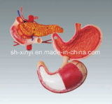 Xy-3329-7 3D Stomach, Pancreas Model