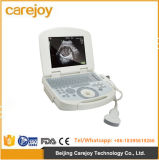 Medical Use Portable Digital Laptop Ultrasound Scanner with Convex Probe-Candice