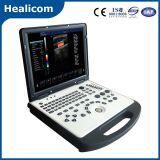 Ce Approved Laptop Portable Color Doppler Ultrasound Scanner (HUC-200)