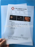 Hot Sale! Dry Ultrasound Film/ Ultrasound Film/ Medical Film/X-ray Film