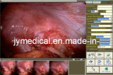 Digital Endoscope (Medical Image Workstation)