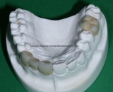 Zorconic Crown Denture for Clinic From Chinese Dental Lab