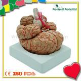 Teaching Plastic Human Brain Model with Artery Distribution