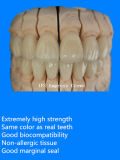 E-Max Crowns and Bridges with Ce Materials Made in China Dental Lab