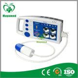 Mabs01 Cheap Bladder Scanner