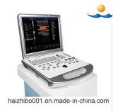 Cardiac Echo Machine Portable Color Doppler Ultrasound Machine