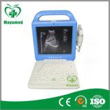 My-A003A Portable Ultrasound Machine Ultrasound Scanner Price