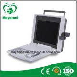 My-A003 Full Digital Notebook Ultrasound Scanner