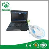 My-A007 Full Digital Laptop Ultrasound Scanner