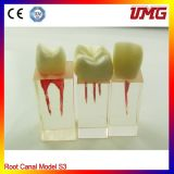 Dental Root Canal Model for Training