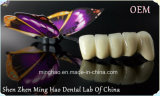 Dental Product of PFM Semi Precious Crown Made in Minghao Dental Lab