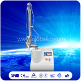 Portable CO2 Fractional Laser Machine for Scar Removal