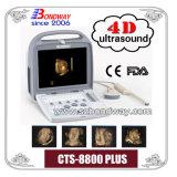 Portable 3D Ultrasound Imaging System, Doppler Ultrasound, 4D Convex Probe and 4D Transvaginal Probe, etc
