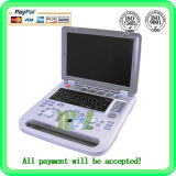 Cheap Laptop Portable Color Doppler 3D&4D Ultrasound Scanner- Mslcu11
