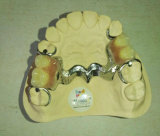 Dental Denture with Framework From Chinese Lab