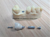 CAD Cam Designed Dental Implant Crowns and Bridge