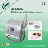 K6s Belly ND YAG Laser Tattoo Removal Device with CE