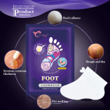 Hot Sale Exfoliating Dead Skin Peeling Foot Mask