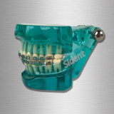 Dental Orthodontics Study Model with Ceramic Brackets