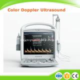Ce Medical Equipment 3D 4D Hand-Held Portable Color Doppler Ultrasound