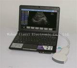Full Digital Portable USB Ultrasound Probe for Laptop PC