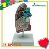Educational Demonstration Disease Lung Anatomical Model