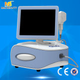 High Intensity Focused Ultrasound Wrinkle Removal Mini Hifu