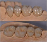 Pfm Crown for Denture From Chinese Dental Lab
