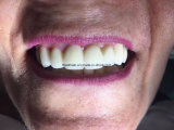 Full Zirconia Crowns and Bridge Without Porcelain