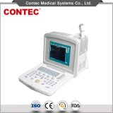 B Mode Portable Ultrasound Scanner - Ce Certificate