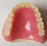 Partial Denture From Chinese Dental Lab