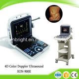 Wholesales Price 4D Laptop Portable Color Doppler Ultrasound Scanner