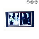 Luxury Good Performance X Ray Film Viewer