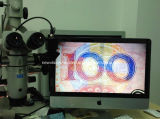 HD Video Camera for Digitalizing Surgical Operation Microscope