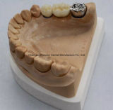 Zirconic Crown Denture for Clinic From Chinese Dental Center