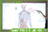 88′′ China Magnetic Whiteboard Multi-Touch Smart Board Interactive for Hosital Use