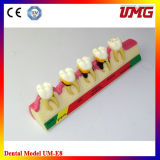 Periodontal Diseases Classification Model for Tooth Model