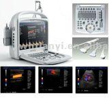 15inch scanner portatif d'échographie-Doppler de couleur de l'affichage à cristaux liquides Ob/Gyn/Vasscular