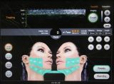 Hohe steigernde Fokus-Ultraschall Hifu Knicken-Abbau-Maschine