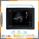 Ultrasonido médico de la computadora portátil del hospital de la proyección de imagen de la alta calidad 2017 (TS60)