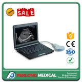 Preço portátil da máquina do varredor do ultra-som de Digitas do portátil do equipamento médico